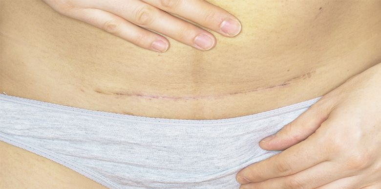 Césarienne : bien s'occuper de la cicatrice